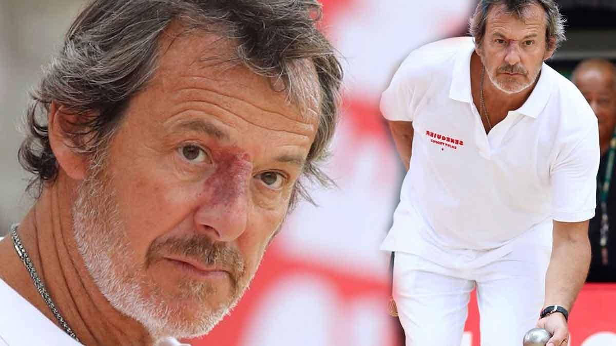 Jean Luc Reichmann est ruiné ? Confessions sur la perte de ses millions d'euros !